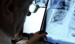 Nga nghiên cứu phát triển thuốc chống lao mới